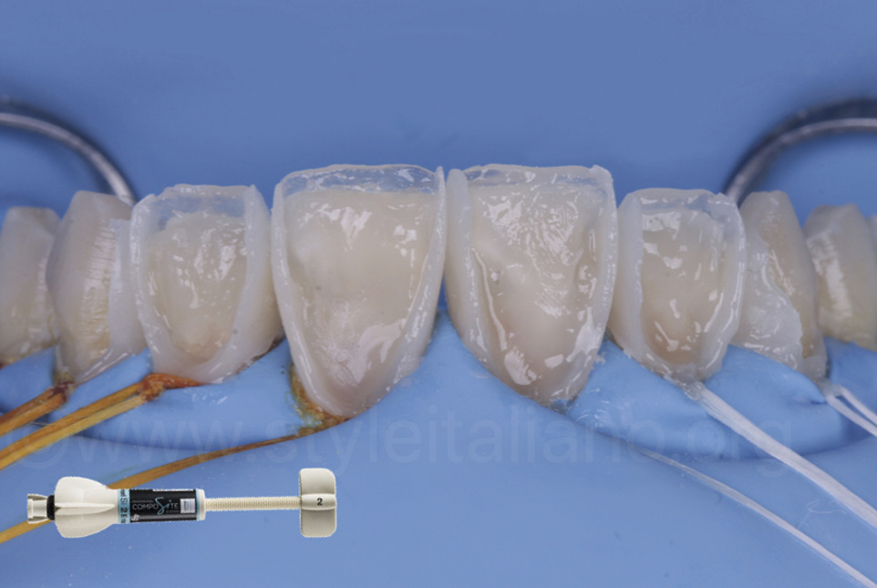 dentin layering with composite