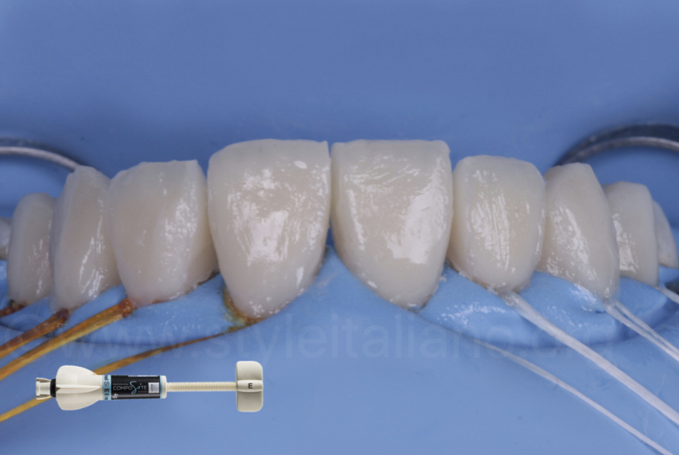 uncured layered composite veneers