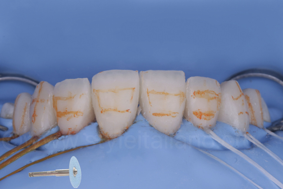 3d anatomy correction of incisor composite restorations