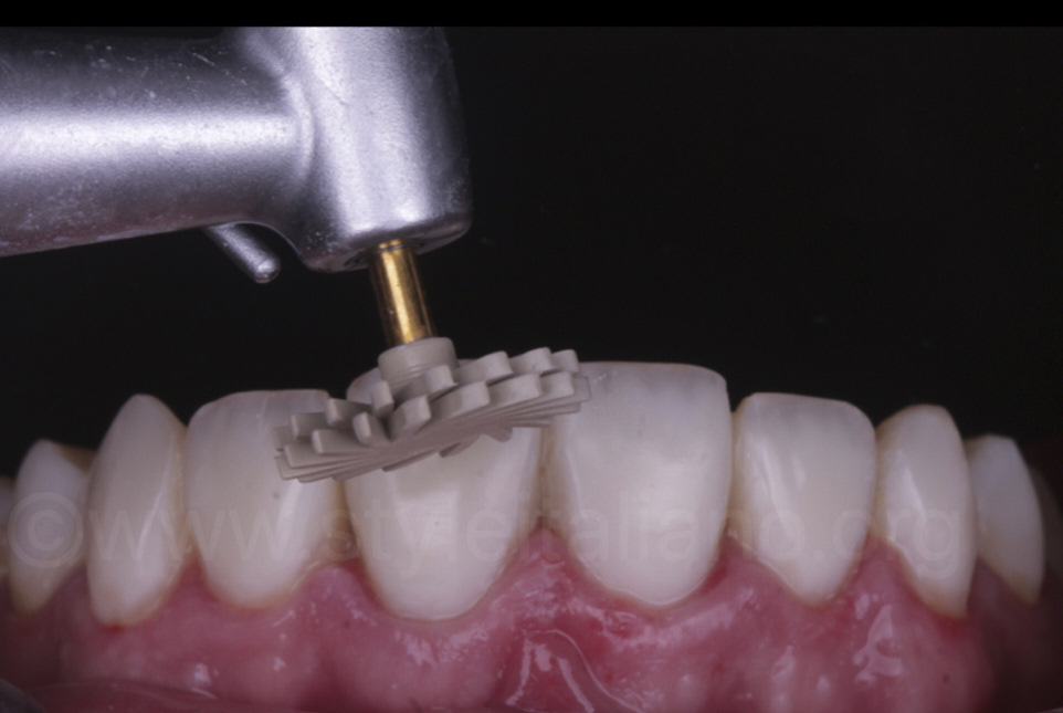 polishing of composite resin direct veneers