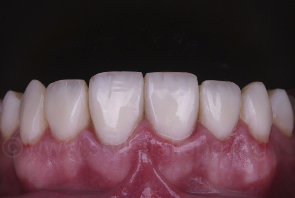 final result of composite resin veneers