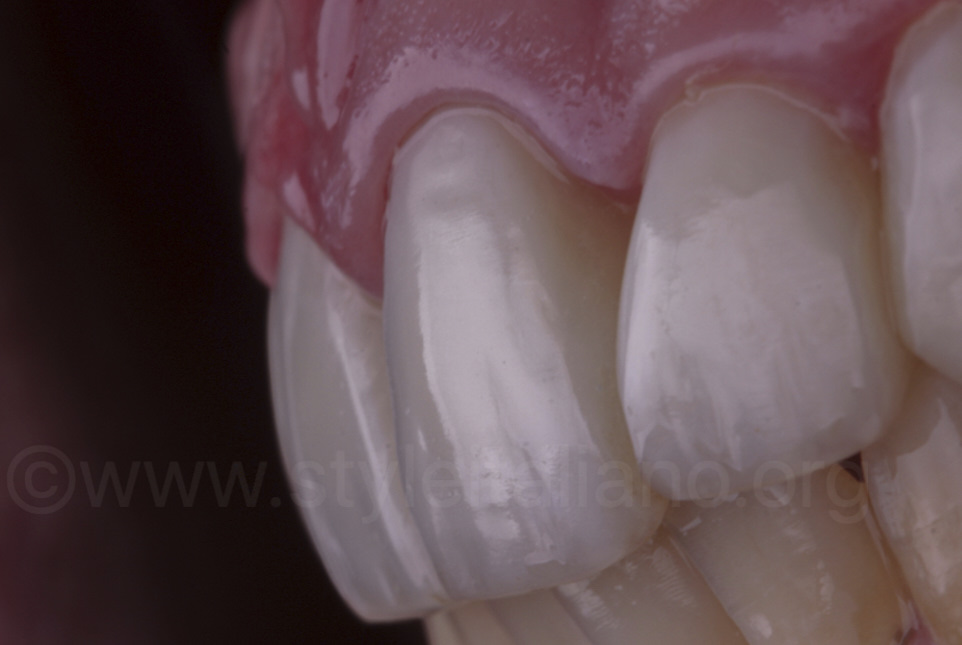 macro texture of composite resin veneers