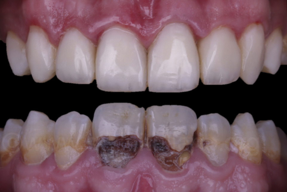 before and after direct composite veneer restoration