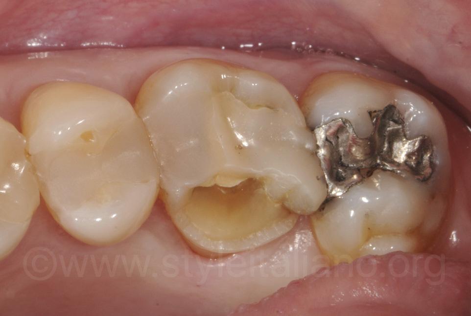 old broken restoration on upper molar