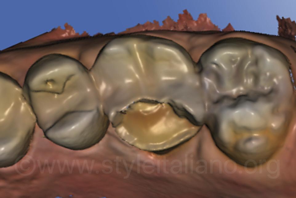 initial digital impression of upper molar