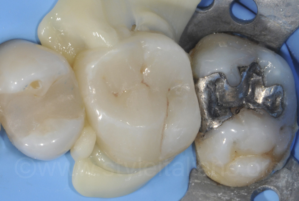 onlay cementation with composite flowing out