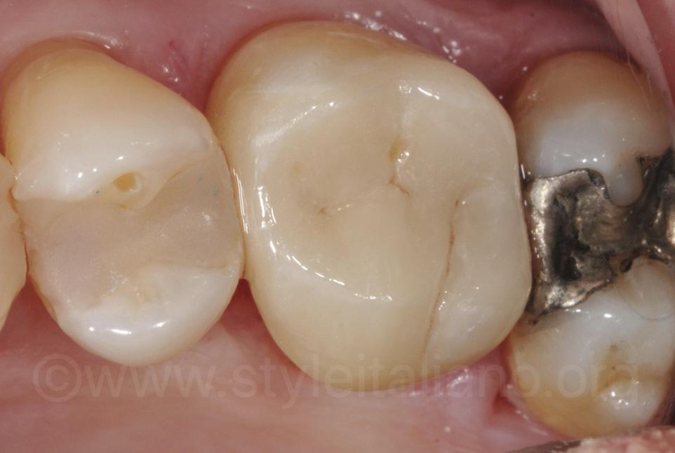 lithium disilicate onlay on upper molar