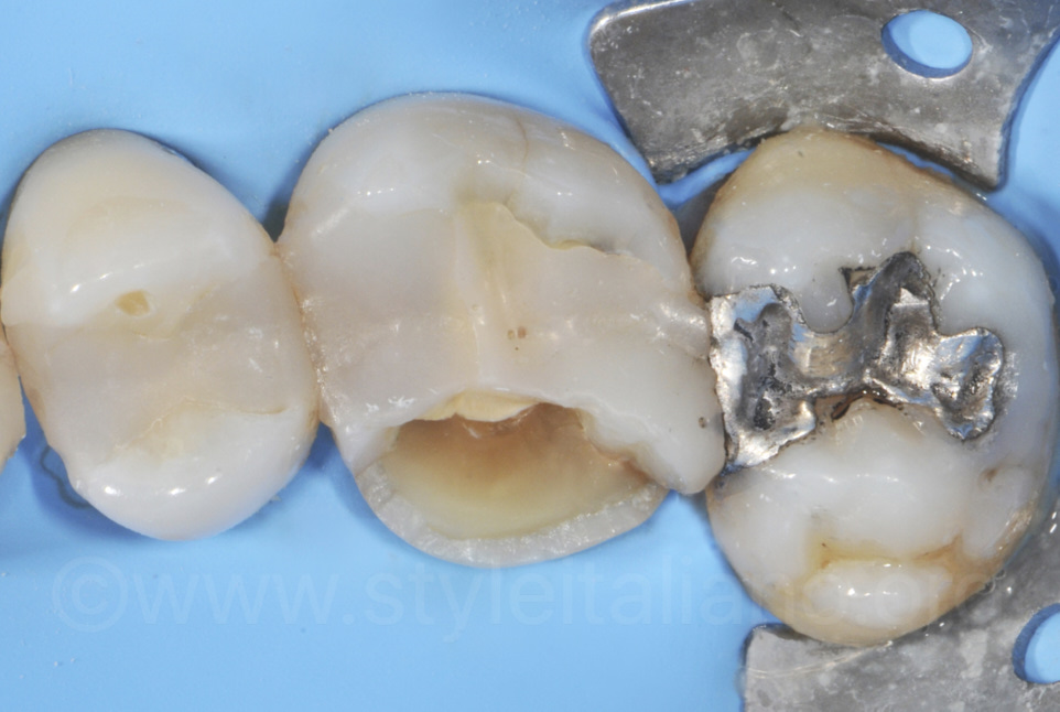 upper molar cavity and fender wedge