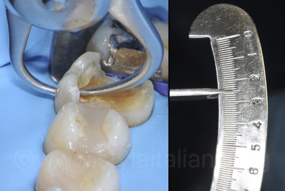 cusp measurement for enamel preservation