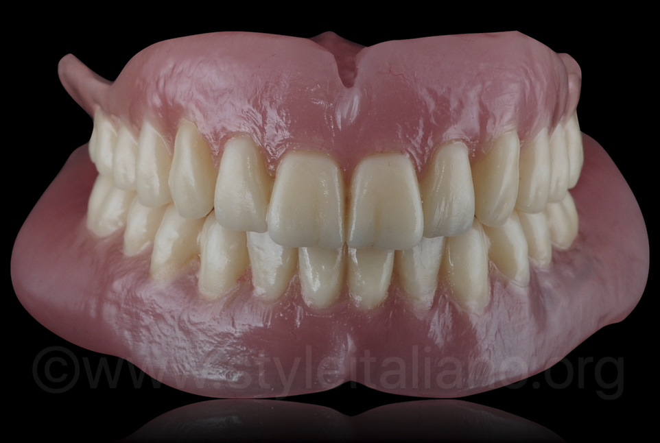 3D printed complete removable dentures
