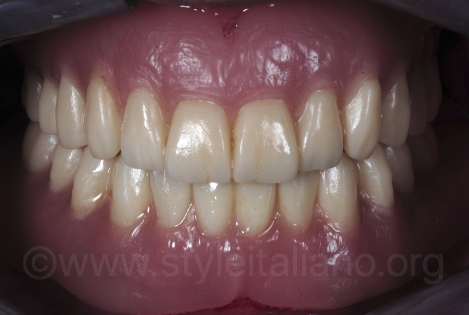 complete provisional dentures