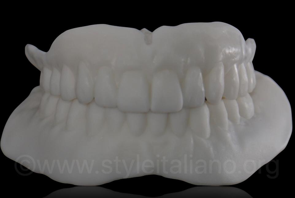 mock-up dentures as custom impression tray