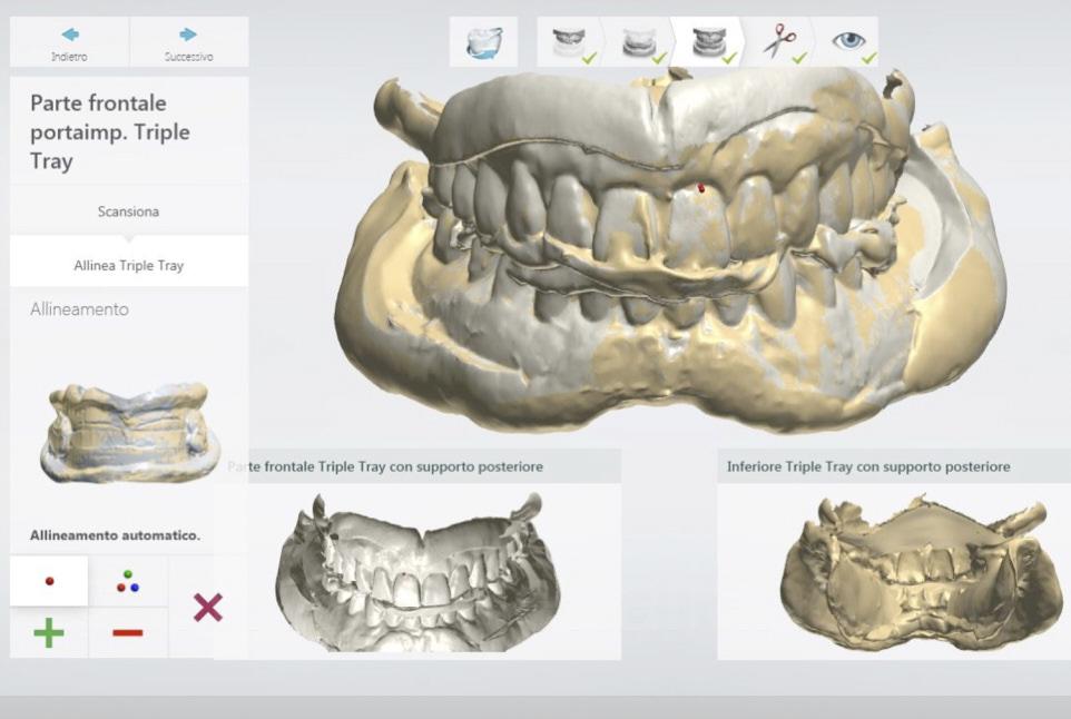 digital project for complete denture