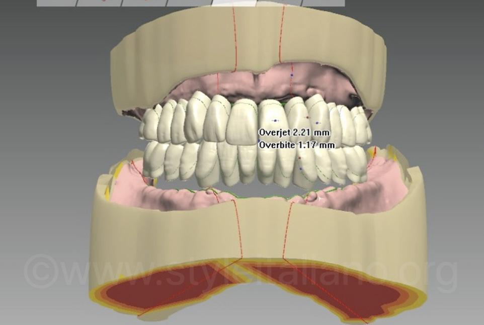 CAD for complete dentures