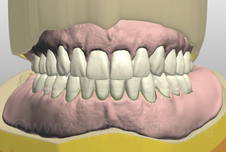 digitally designed complete upper and lower dentures