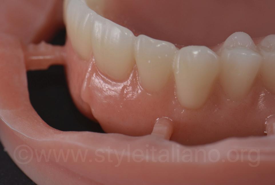 CAM denture before finishing