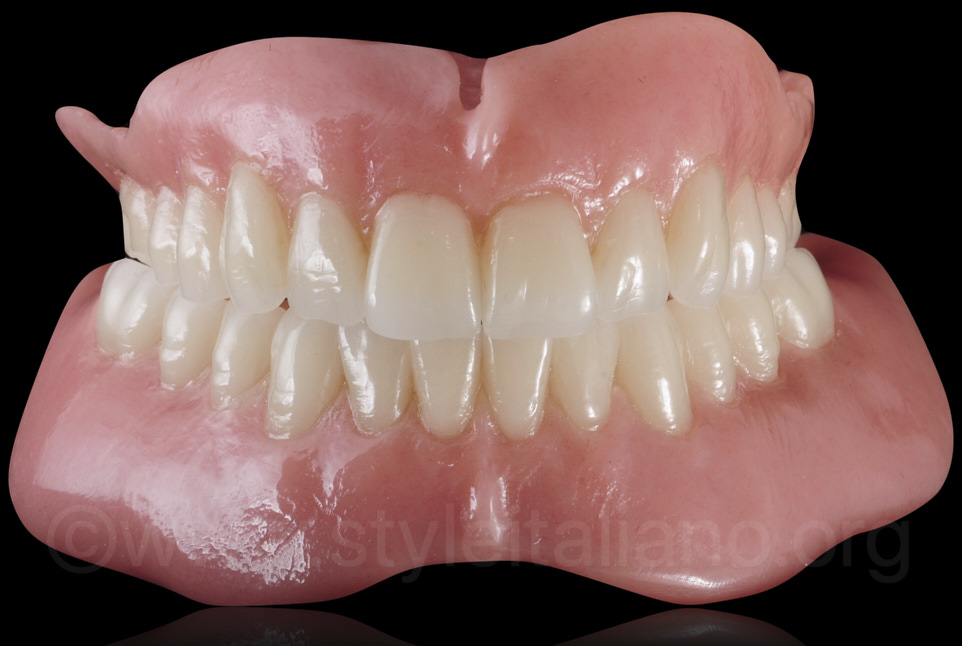 final digitally designed and fabricated dentures