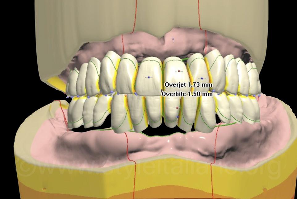 digital complete denture project