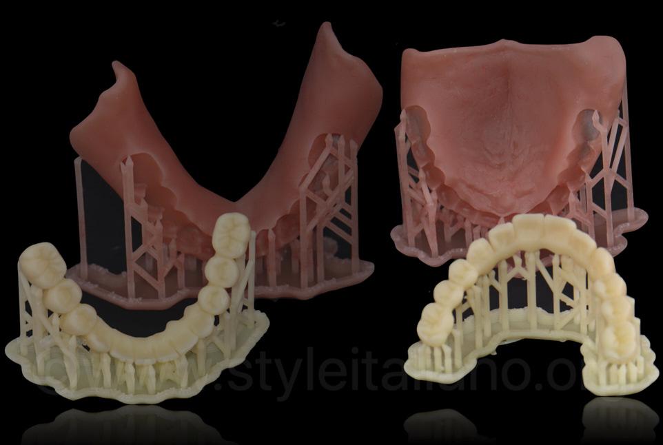 printed 3D printed provisional dentures