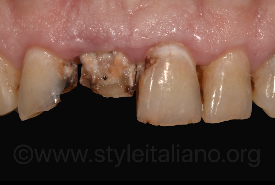 poor hygiene and decayed teeth