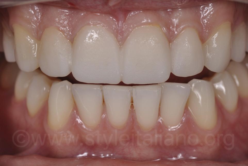provisional veneers with DMG resin
