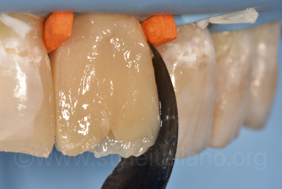layering of composite masses on central incisors