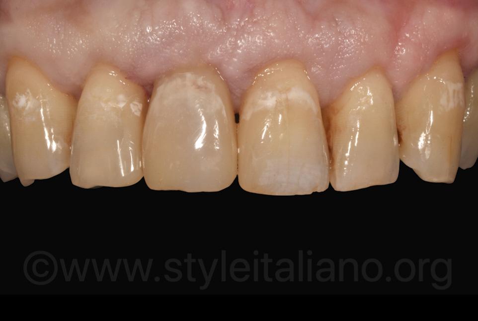 final aspect of multiple incisor composite restorations