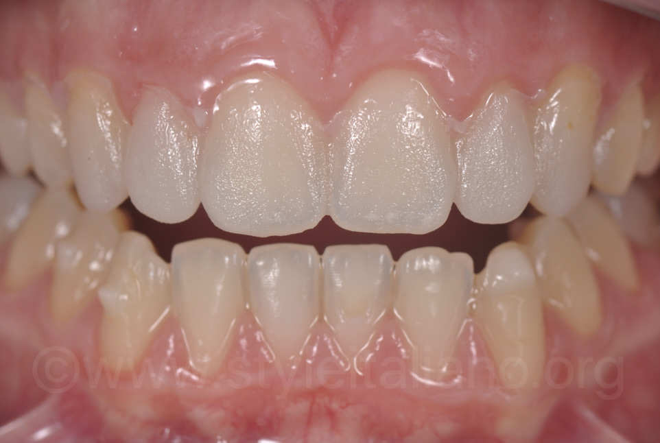 mock-up of upper incisors