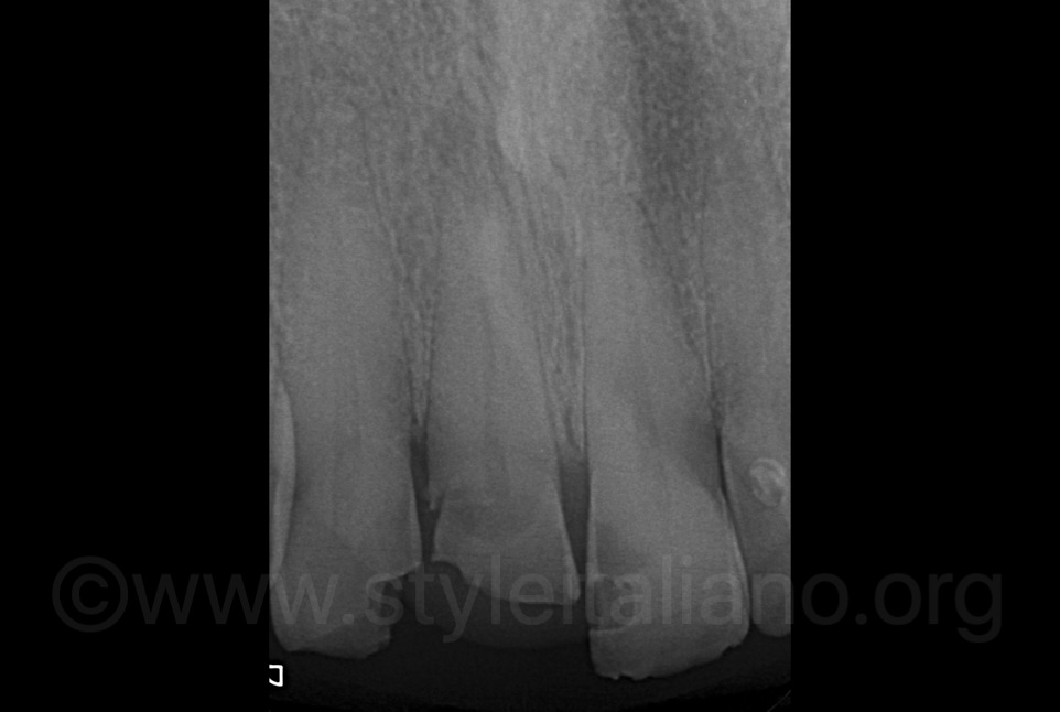 x-ray showing apical radiolucency lesion