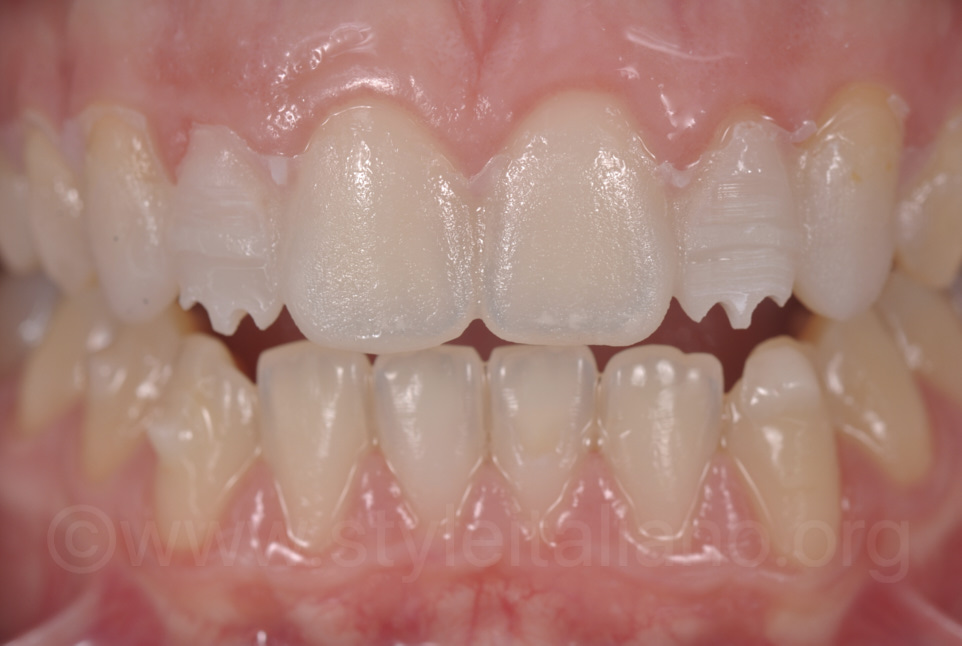 preparation of lateral incisors through the mock-up