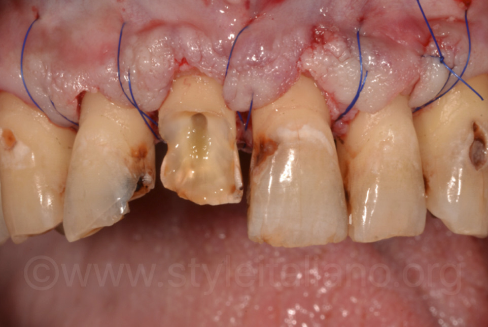 suture after crown lenghthening surgery