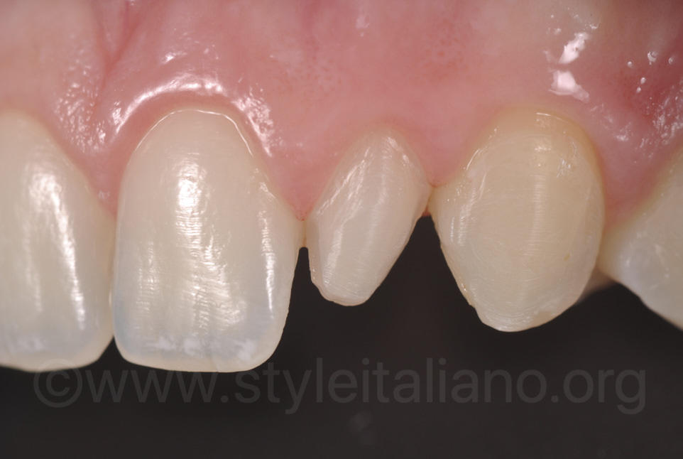 close-up of peg lateral incisors