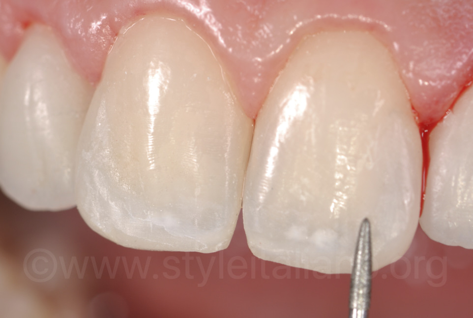 diamond bur on central incisors