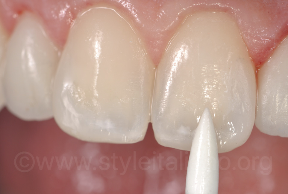 arkansas for incisor polishing