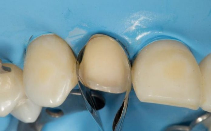 Unica anterior matrix placed on the tooth.