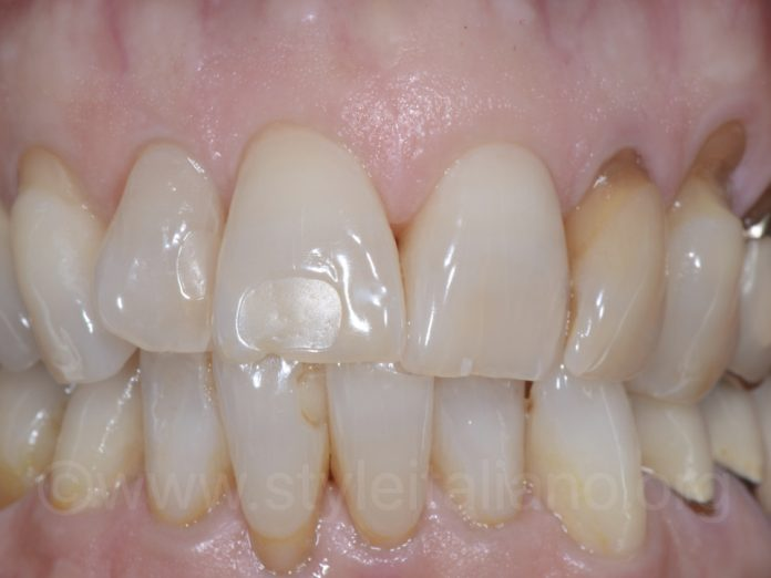 Pre-operative view of the from region, showing old composites and several caries to be removed.
