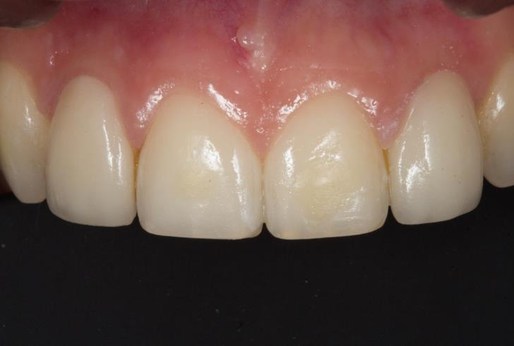 Pre-operative view showing two ceramic veneers on laterals 12 and 22.