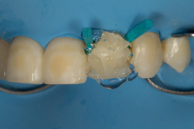 Composite has been covered with oxalate gel and polymerized for 20 seconds.