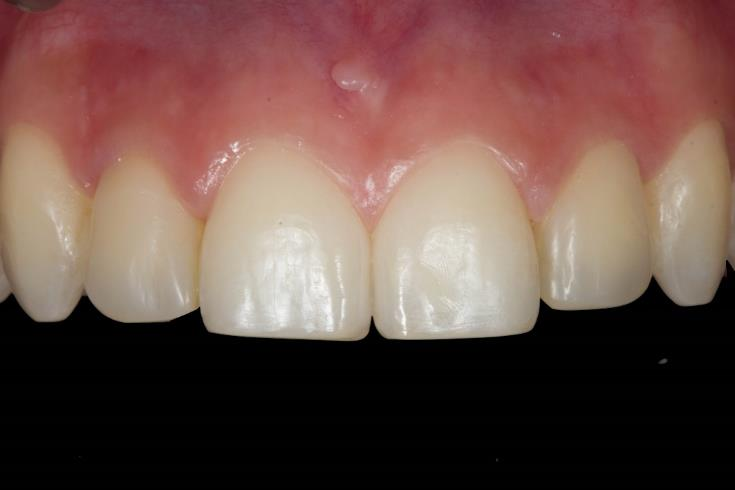 Composite veneers restoration after finishing and polishing