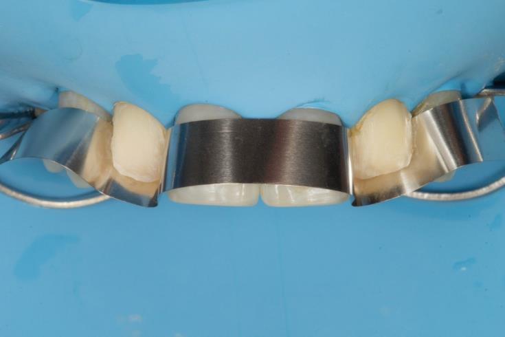 Old ceramic veneers have been removed first. Adjacent teeth have been protected using a metal matrix