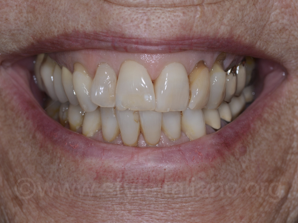 universal smile direct composite veneers approach