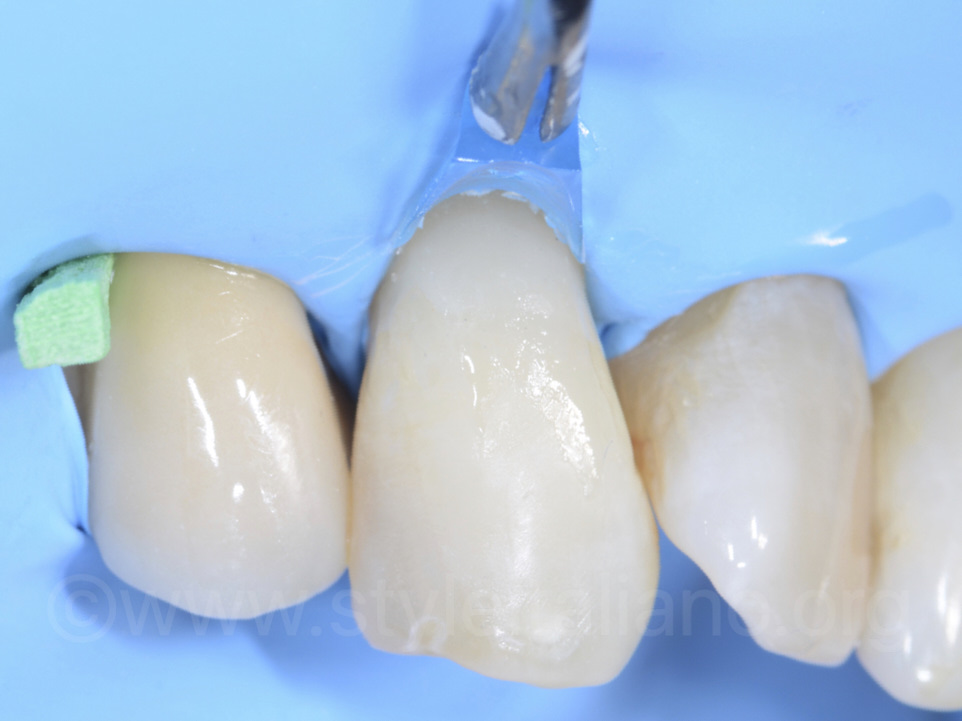 Post-operative result prior to finishing and polishing procedures