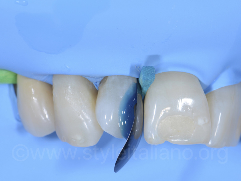 old mesial class III composite of 1.2 was removed and after etching step