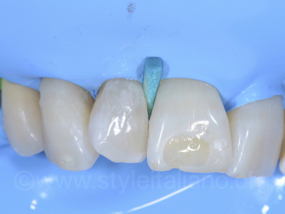 Post-operative view of the polished teeth