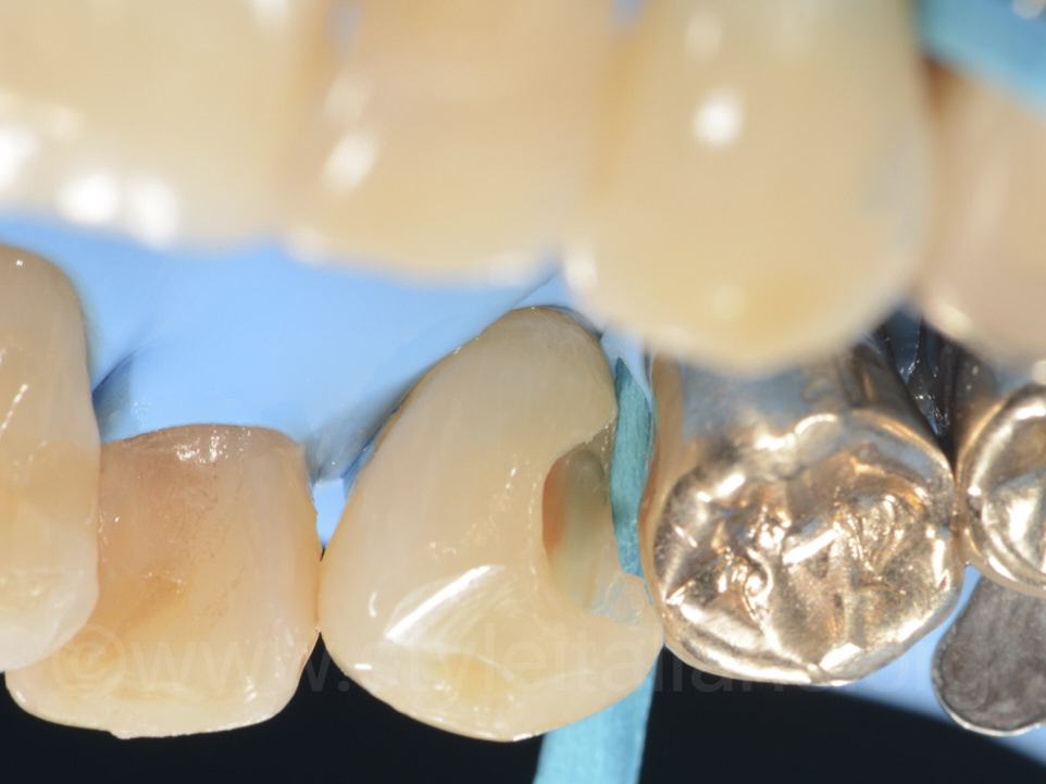 Palatal view of 1.3 after caries removal and cavity preparation