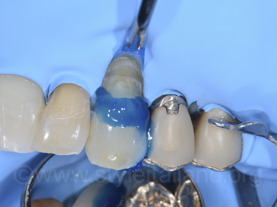 After cavity preparation, the etching step on tooth 2.3