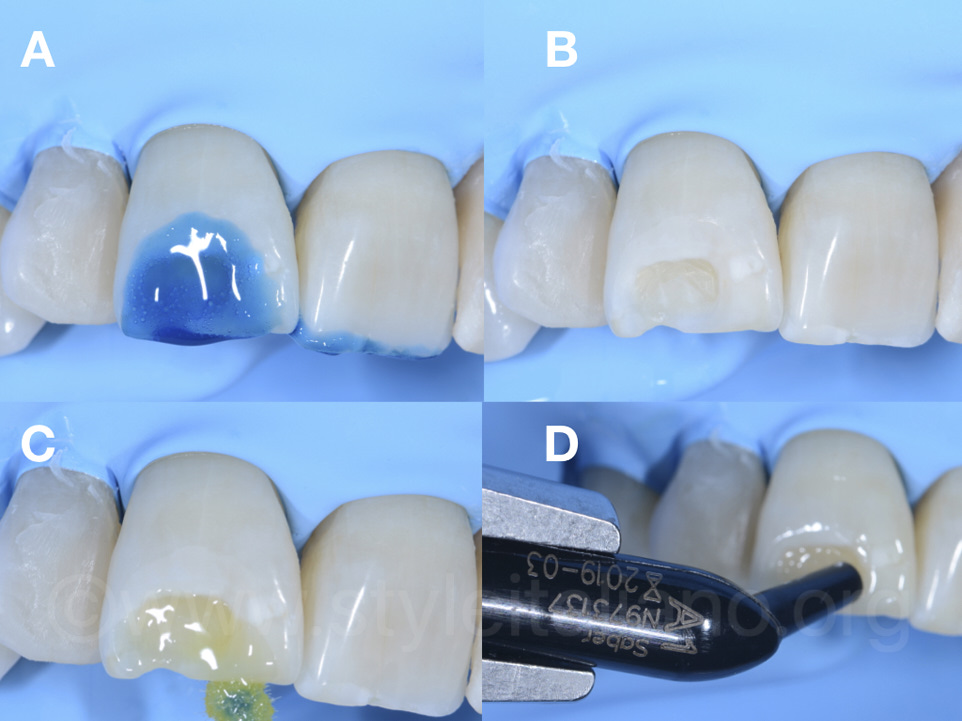Intra-operative views of each step during 1.1 restoration