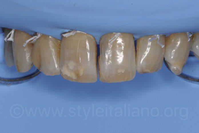 dark teeth under rubber dam isolation