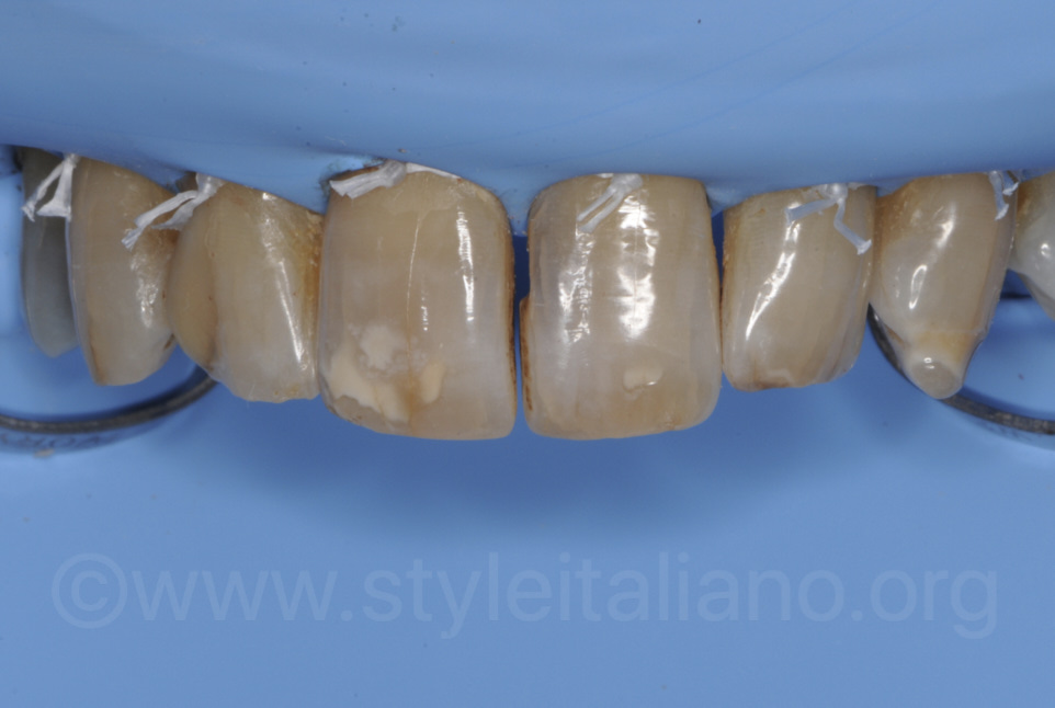 dark teeth under rubber dam isolation