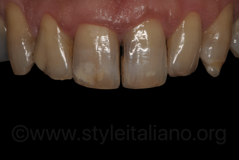 dark decayed teeth with caries